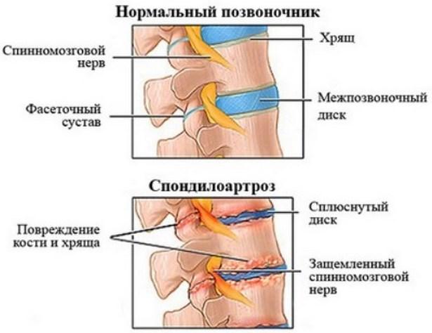 injekciók artrózishoz)