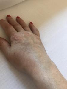 artritisz artrózisos bursitis kezelése