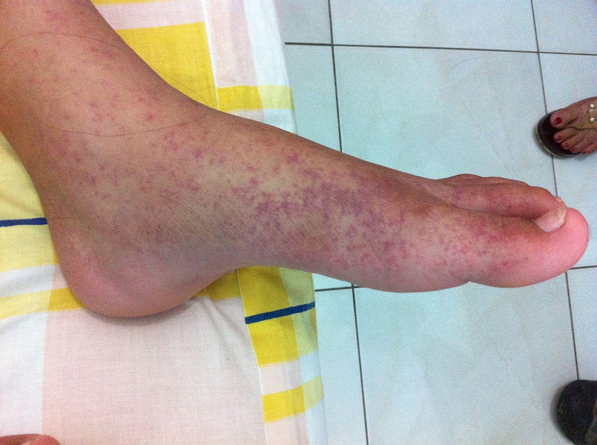 a lábak ízületeinek fertőző betegségei kezelése
