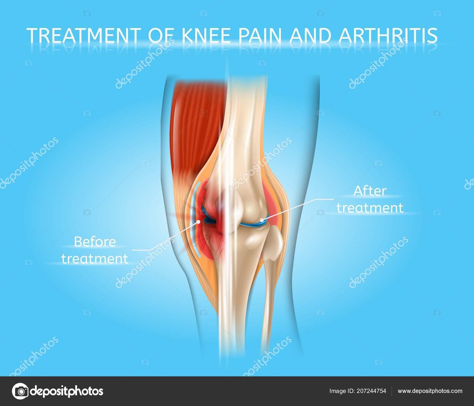 rheumatoid arthritis kezelésére homeopátiát)