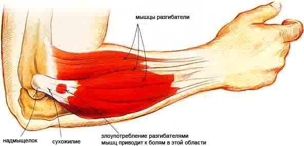 térdízület endoprotezálása