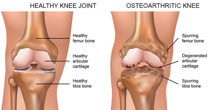 hogyan lehet tablettákkal enyhíteni a lábak ízületeit differenciálatlan és vegyes kötőszöveti betegségek