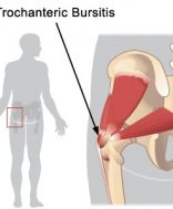 hajlító fájdalom a csípőben