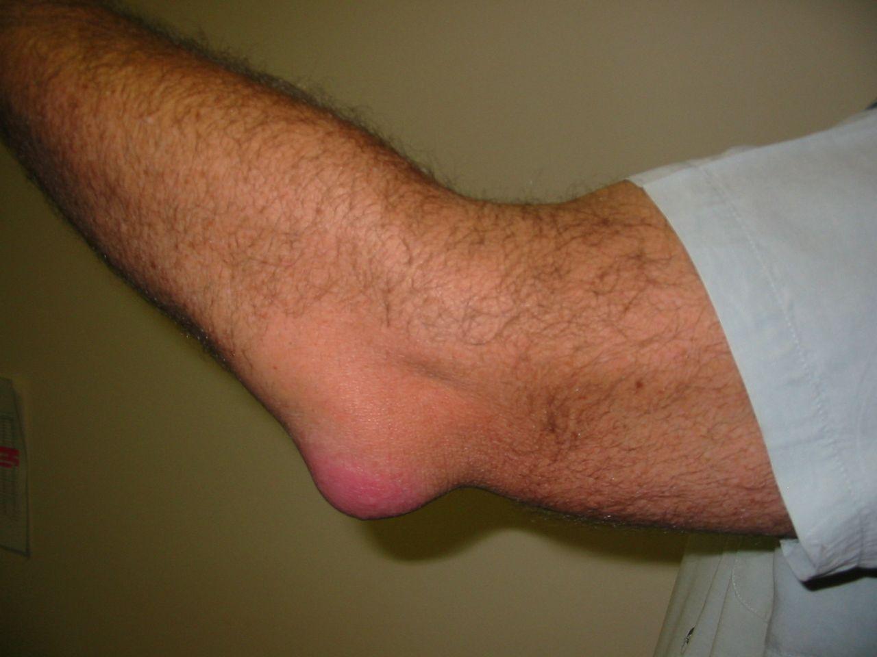 könyök ízületi gyulladásos tünetek és kezelés)