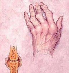 mely ízületeket a leggyakrabban a rheumatoid arthritis