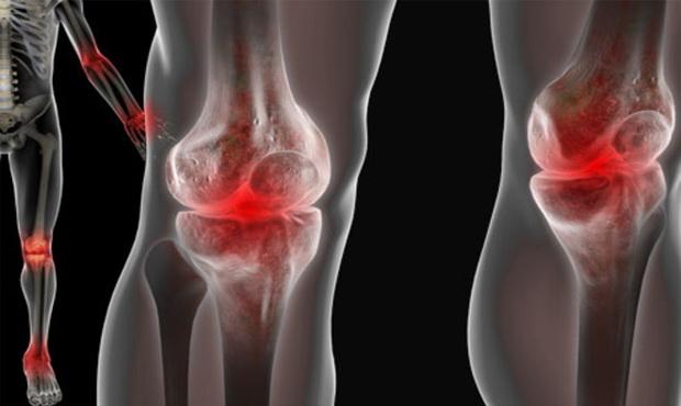 térd artritisz 1 fokos kezelés homoktövis olaj ízületi kezelésre