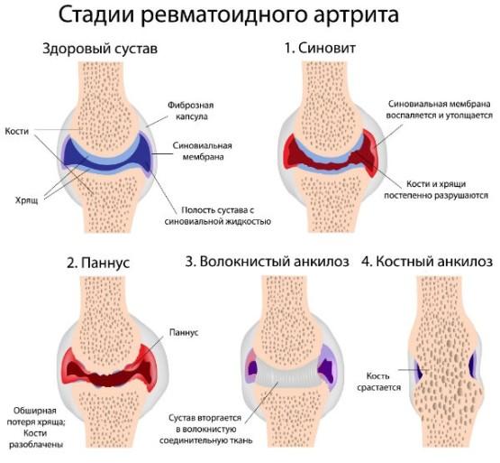 viburnum ízületi kezelés céljából
