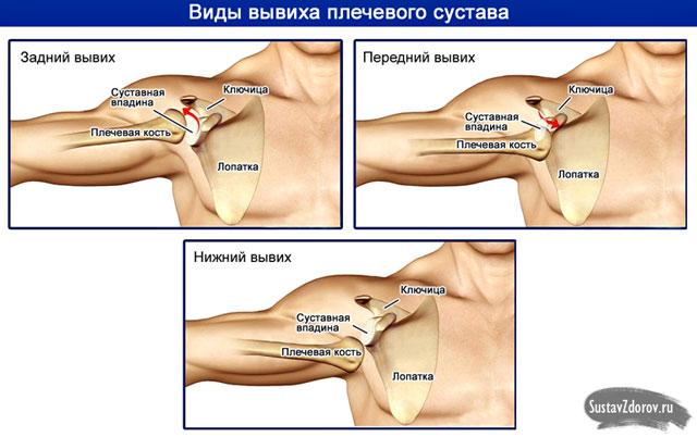 a vállízület artrózisa 3 fokos kezelés)