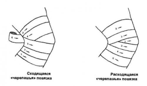 fonáció az ízületek artrózisával