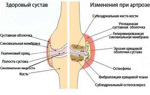 bursitis és a vállízület kezelésének szinovitisz