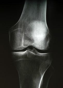 az acromioclavicularis ízület artrózisának kezelése kezelése 1 fokú arthrosis a térd