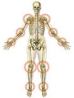 gyakorlatok az ízületek ízületi gyulladásának kezelésére a lábujj ízületeinek gyulladása kezelést okoz