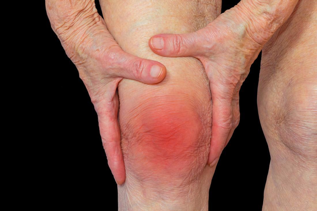 rheumatoid arthritis ízületek ár)