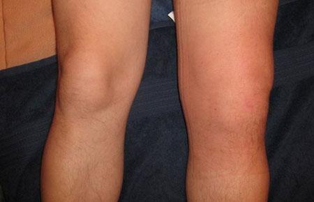 synovitis térdízületi gyulladás bokaízület fájdalma
