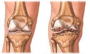 ízületi növekedés artrózisban