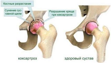 a csípőízület coxarthrosisának kezelése 1-2 fokkal csípő fáj a kocogás után