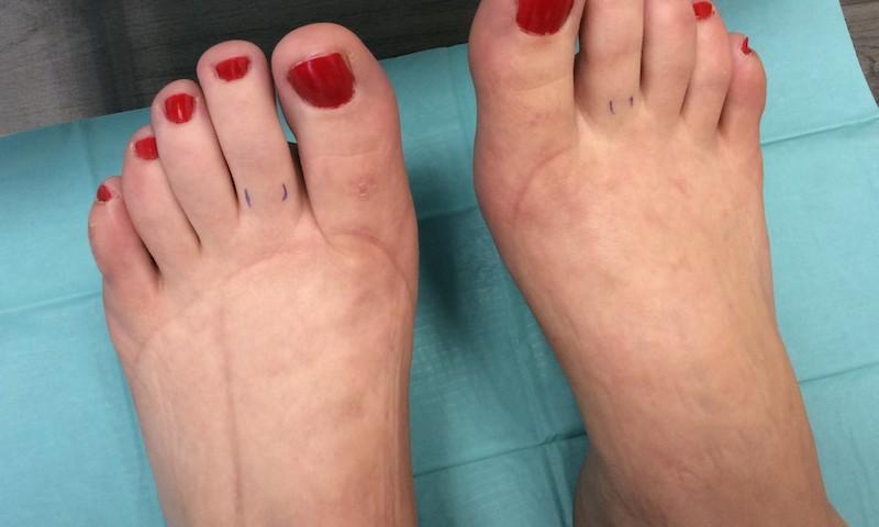 a boka és a láb károsodása)