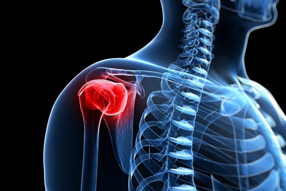 fájdalom a vállízületekben és a csontokban)