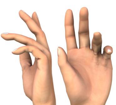 könyökfájdalom az ujjak hajlításával a lábujjak ízületeinek fájdalomkezelése