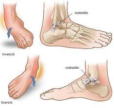 láb boka sérülések)