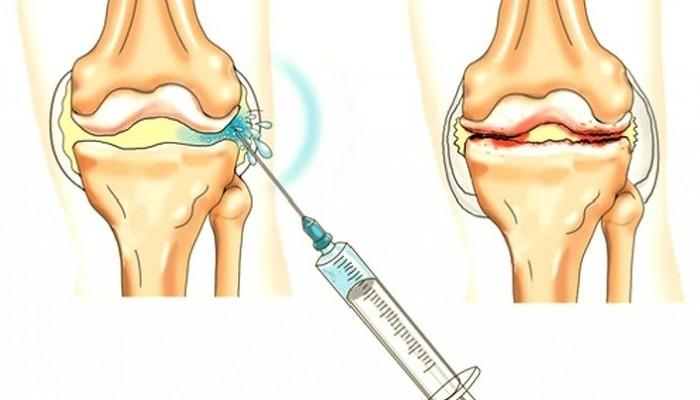 doa 1 fokos csípőízület kezelés)