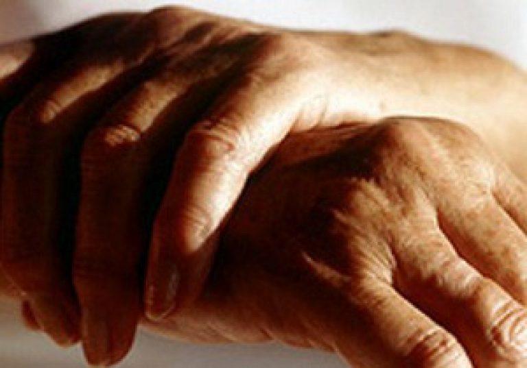 mit kell venni az ujjak artritiszével)