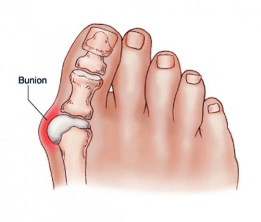 a lábujjak ízületei kezelést okoznak