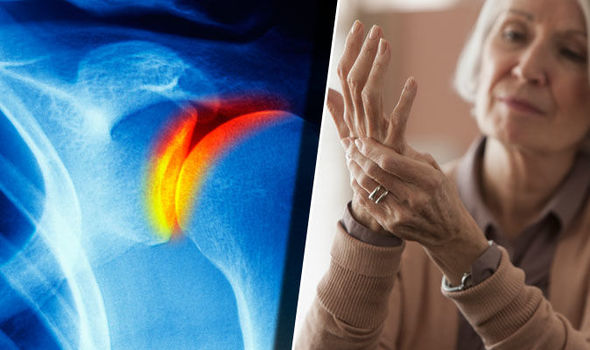 csípőízületi gyulladás időskori kezelésben