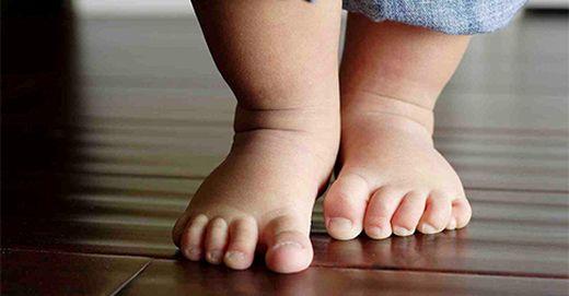 fájdalom a csípő dysplasiaban gyermekeknél csontritkulásos kenőcs, amely jobb