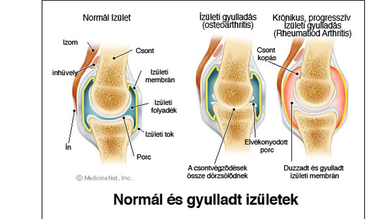 ízületi ízületi gyulladáskezelő készülék)