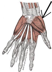 hüvelykujj fájdalma és összeroppantása baloldali hátfájás okai