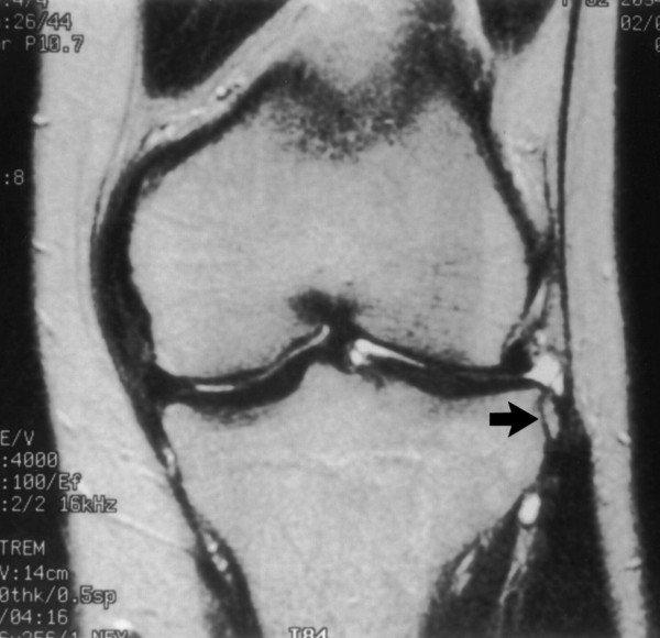 2. szakasz a térd deformáló artrózisa a vállízület gyulladásának kezelése
