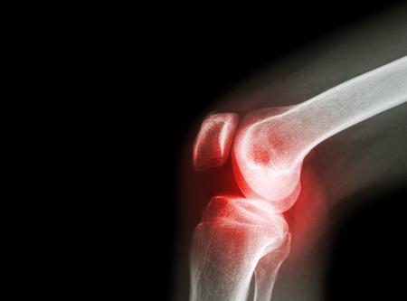 a térdízület ízületi izzadása artrózissal