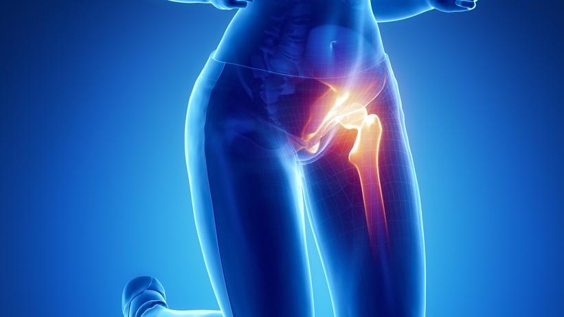 fájdalomcsillapítás a csípőízület gyulladása esetén)