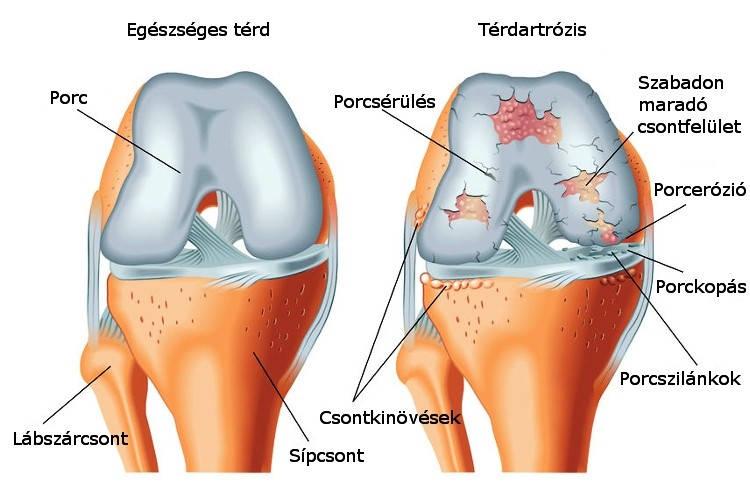 térdízületek gyógyulnak indometacin a térd artrózisában
