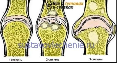 a térd gonartrózisa 3 fokos kezelés)