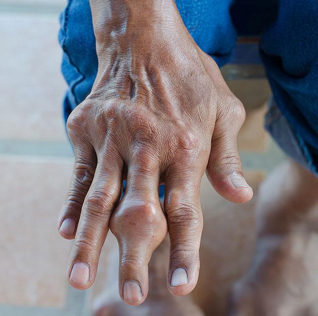 fájdalom a jobb kéz középső ujjának ízületeiben