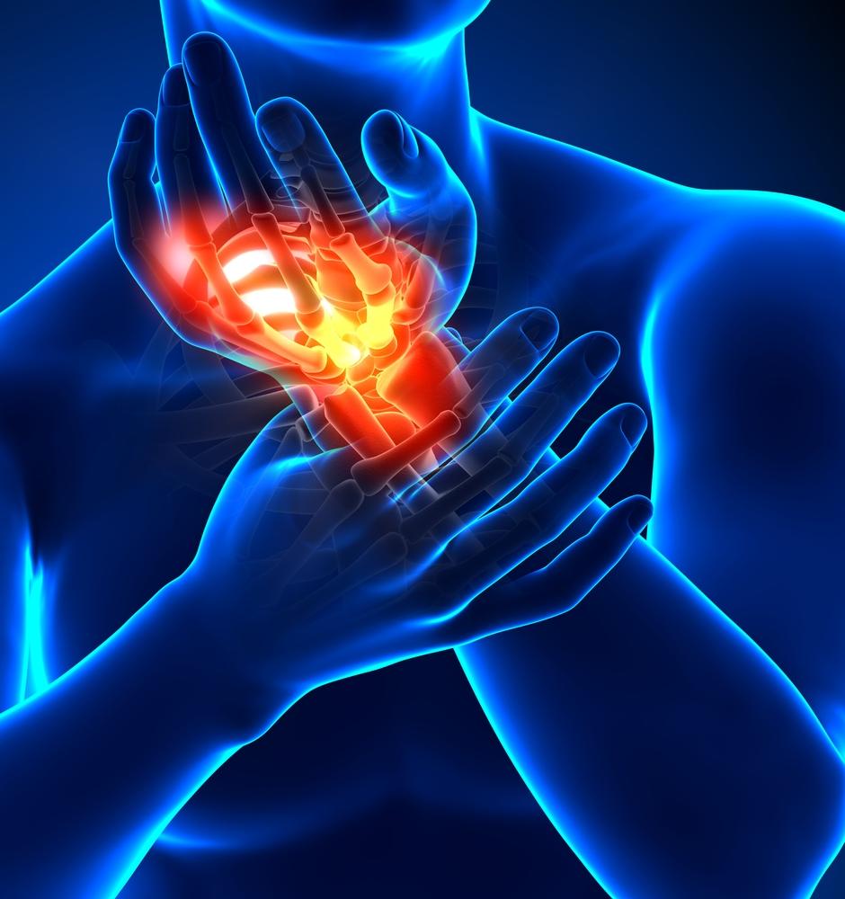 csukló-sprain kezelés