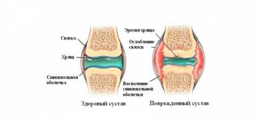bursitis és a vállízület kezelésének szinovitisz)