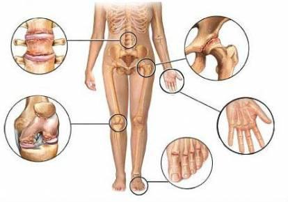 a vállízület osteoarthrosisának kezelési módszerei)