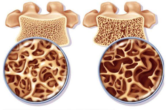 csontritkulás ízületek kezelése
