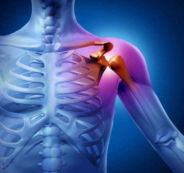 súlyos fájdalom a vállízület milyen betegség fórum artrosis és kezelése