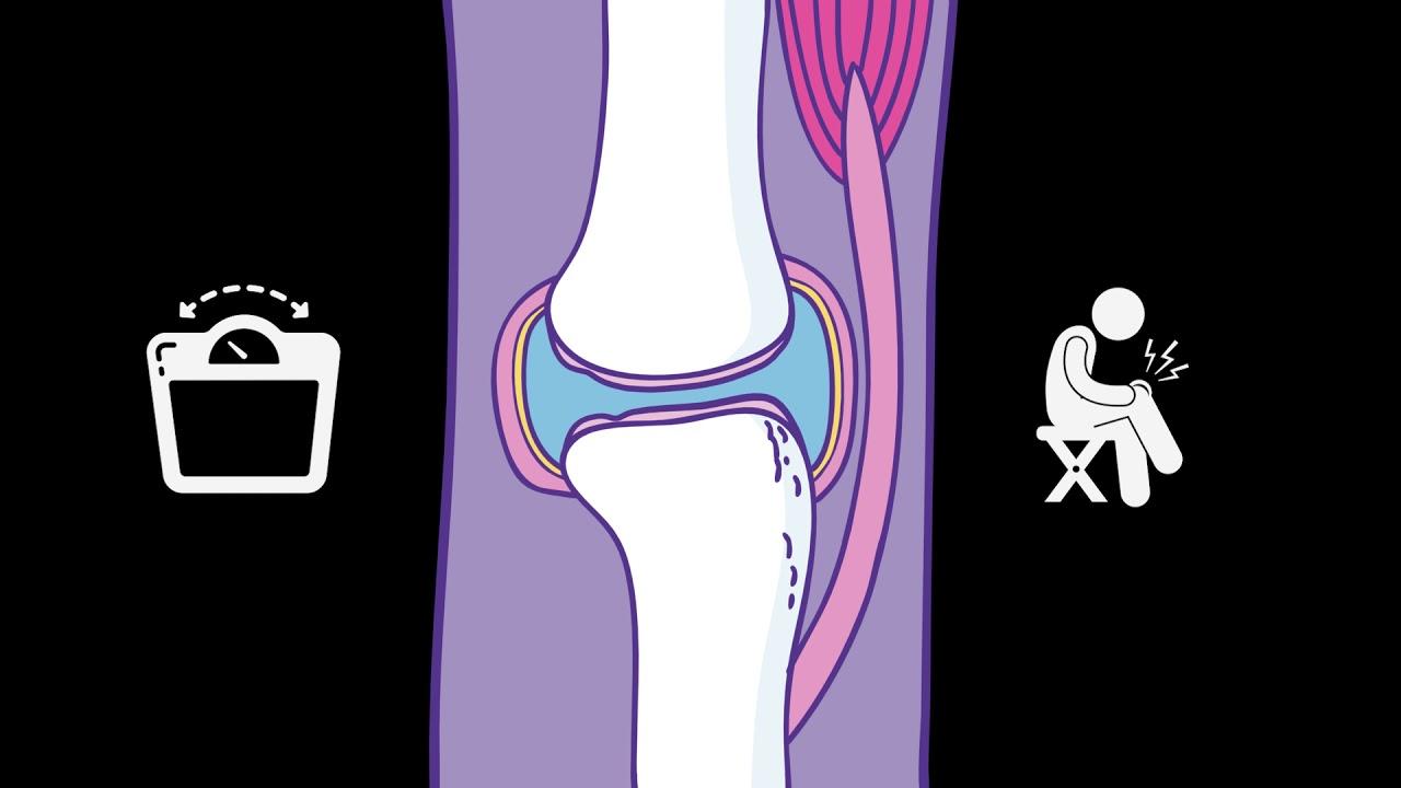 osteoarthritis 3 fokos vállízületi kezelés