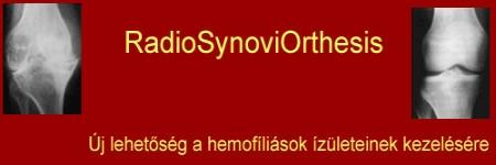 térd hemarthrosis kezelés áttekintése)