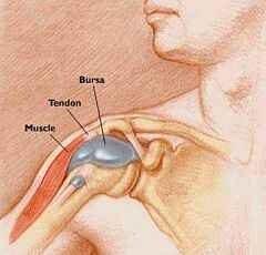 váll bursitis kezelésére)