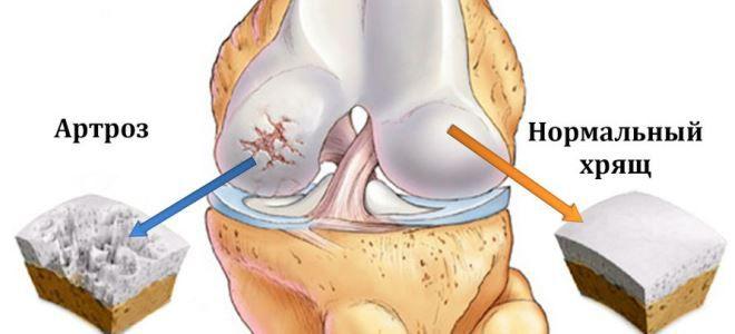 bilaterális gonarthrosis a térdízület 2 fokos kezelése