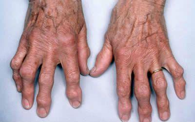 a könyökízület deformáló artrózisa 2 fokkal