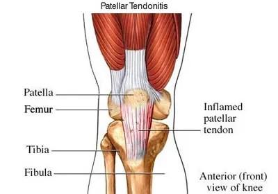 eszköz artrózis-orion kezelésére