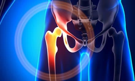 hogyan lehet enyhíteni a csípőízületek fájdalmát