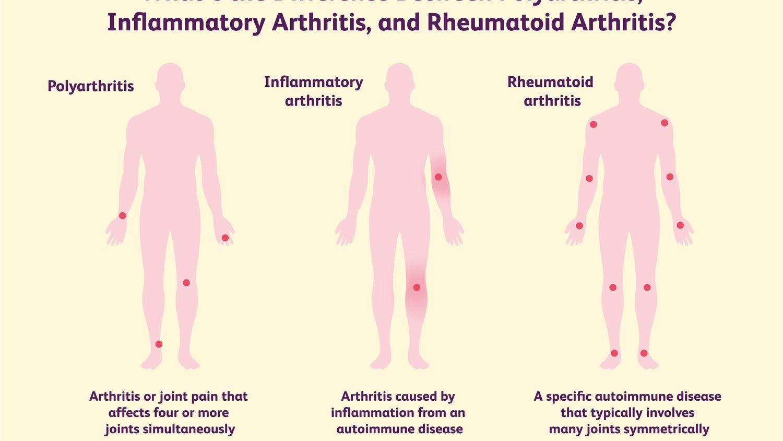 Artrózis kezelése fóliával. Ízületi porckopás (artrózis) - Tünetek és okok